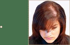 Женщинам до 2 стадии по шкале Людвига