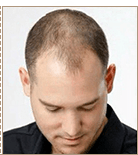 Мужчинам до 3-4 стадии по шкале Норвуда-Гамильтона