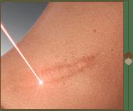 Фракционный неабляционный фототермолиз