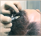 Введение полученных стволовых клеток в область волосяного покрова