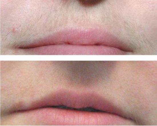 Лазерная эпиляция: верхняя губа