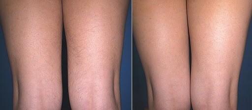 Лазерная эпиляция: ноги